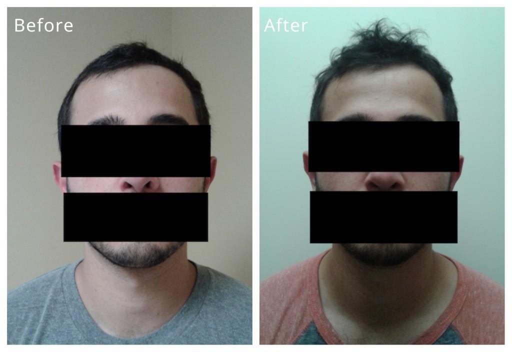 alopecia image